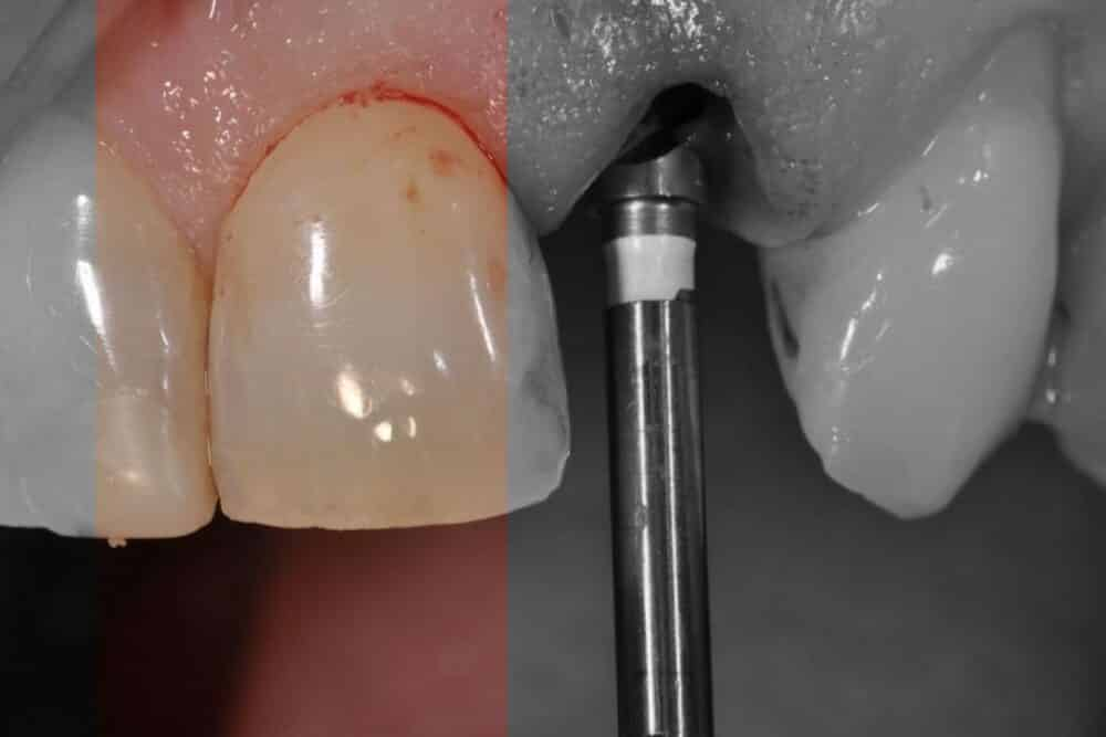 Van A tot Z naar een fraai resultaat in de esthetische zone | Implant College 02