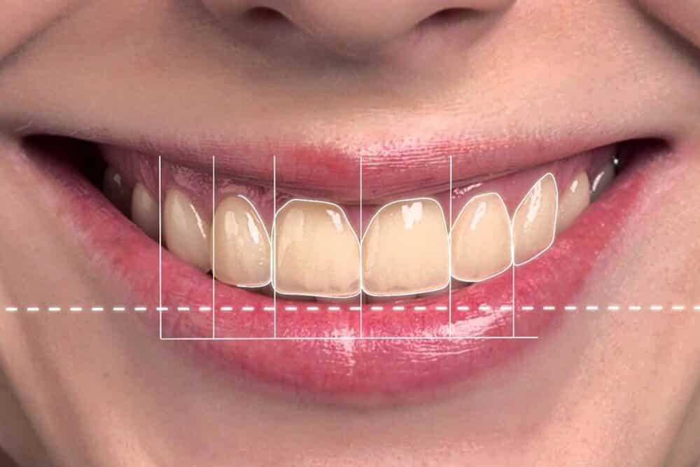 DSD Digital Smile Design | Implant College 01