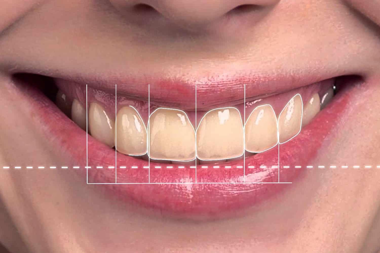 DSD Digital Smile Design | Implant College 01