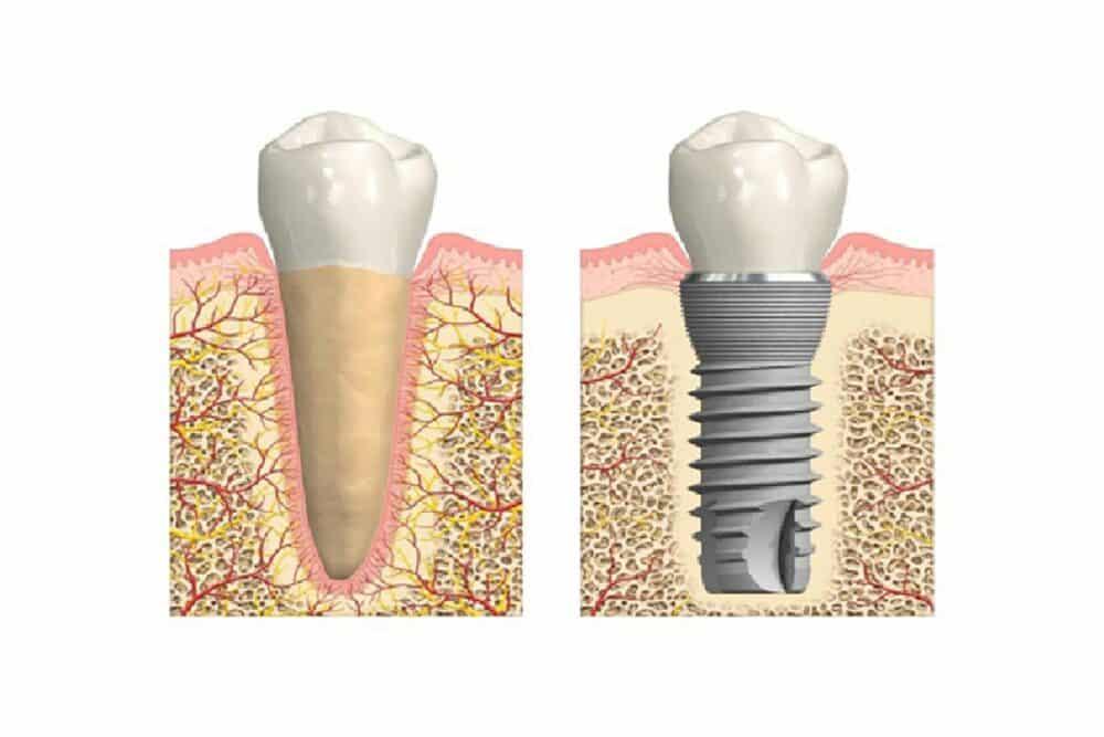 Osseoïntegratie als succesfactor in implantologie   Implant College 03