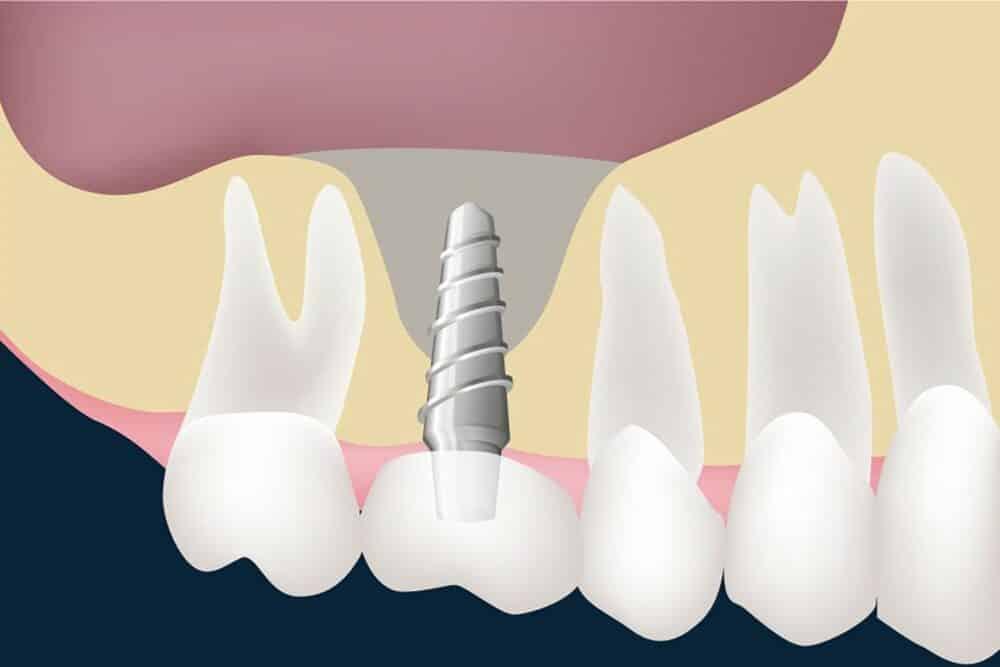 Cursus sinusbodemelevaties / sinuslift | Implant College 01